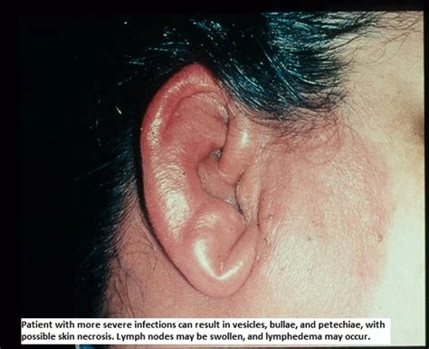 Cellulitis - Infectious Disease and Antimicrobial Agents