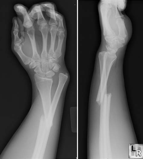 LearningRadiology - Galeazzi and Monteggia Fracture-Dislocations